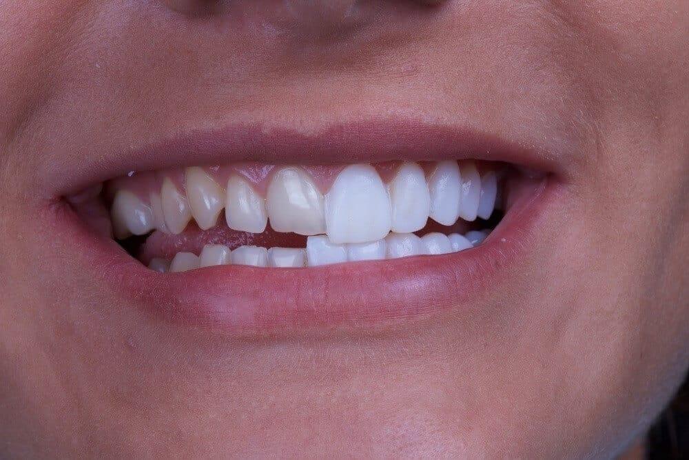 สิ่งสำคัญที่ต้องรู้ก่อนเข้ารับการทำวีเนียร์ฟันขาว
